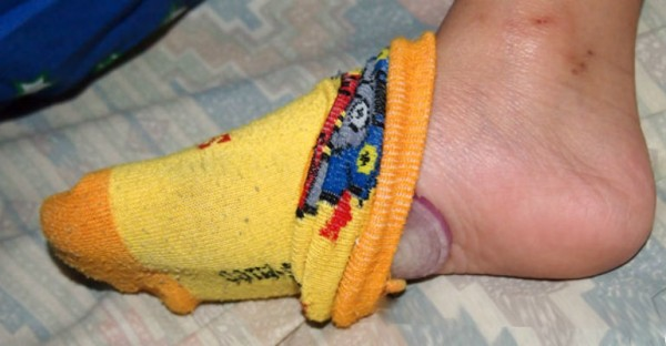foot-600x3121