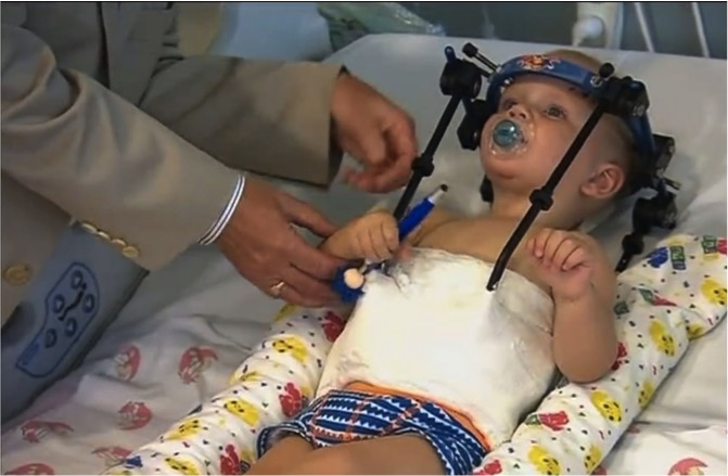 mj-godupdates-toddler-survives-miracle-surgery-after-decapitation-31