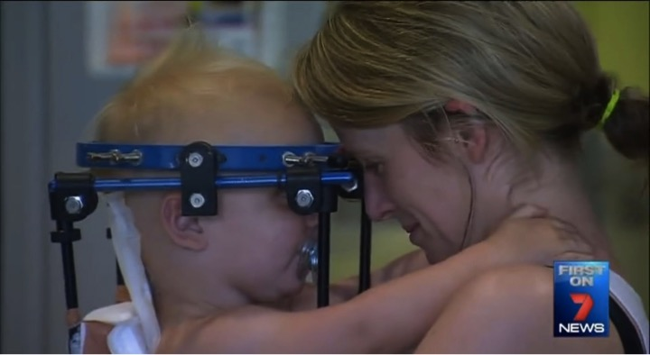 mj-godupdates-toddler-survives-miracle-surgery-after-decapitation-5