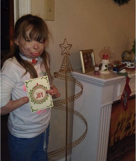mj-godupdates-burned-orphan-wishes-for-christmas-cards-4