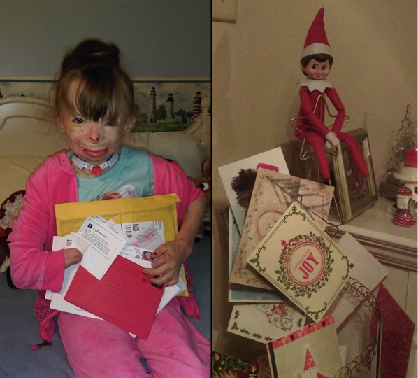 mj-godupdates-burned-orphan-wishes-for-christmas-cards-5